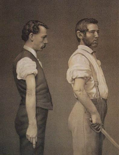 civil war soldiers that were wounded