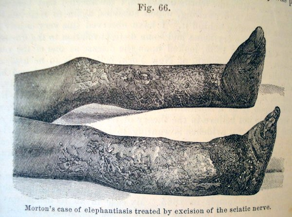 elephantiasis of the leg