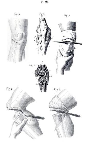 civil war amputation knee