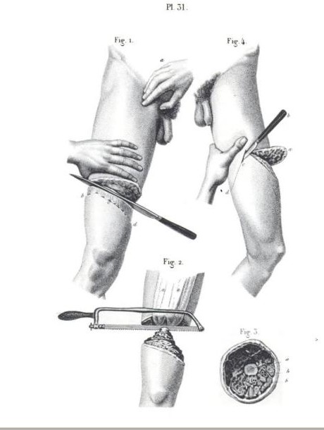 civil war amputation thigh